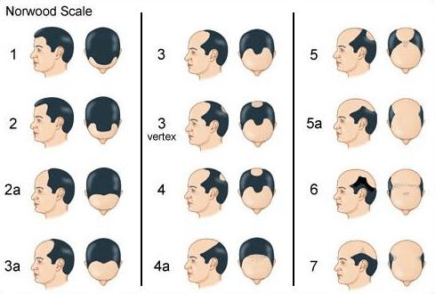 stadia haarverlies proces mannen Noorwood Schaal kaal vertex alopecia androgenetica hormoon dihydroxy-testosteron DHT stress Norwood Scale kale kruin inhammen