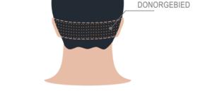 donorgebied baardtransplantatie baard snor snortransplantatie haar implantatie