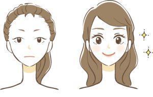 before after eyebrow wenkbrauw voor en na wenkbrauwtransplantatie man vrouw